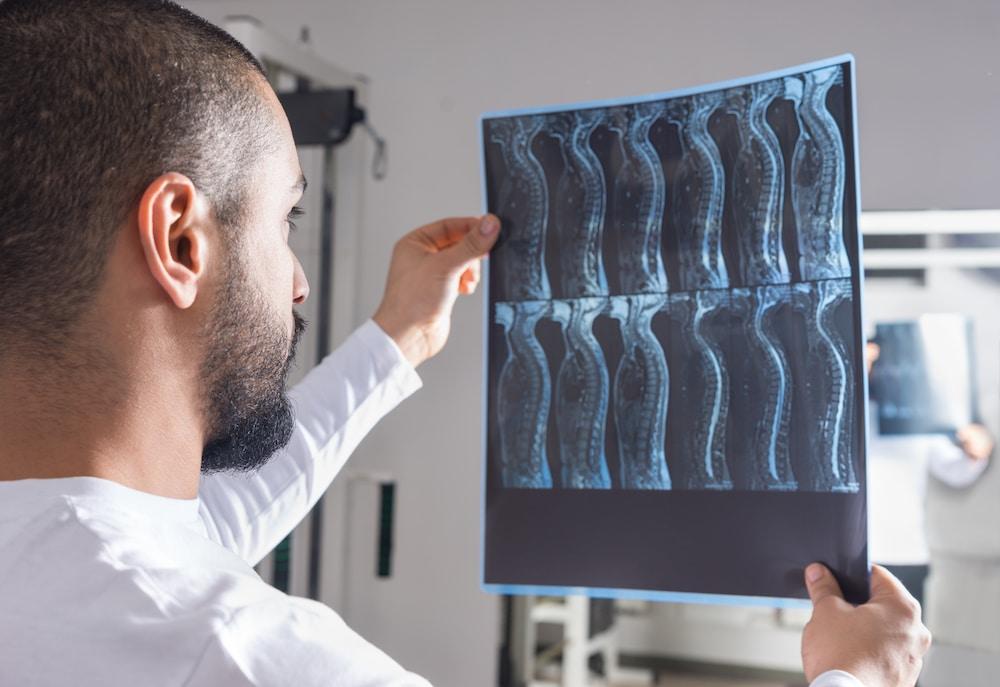 Radiologist analyzing spine x-ray